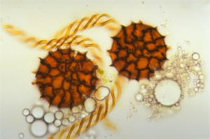 Thallose liverwort. Spores & elaters (Fossombronia foveolata) © C. Cargill, Australian National Botanic Gardens
